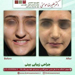 بهترین جراح بینی اصفهان