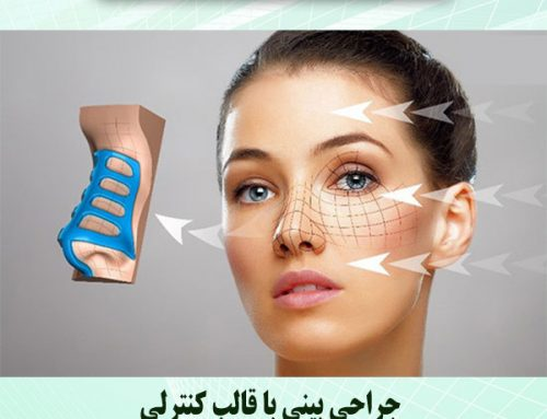 جراحی بینی با قالب کنترلی