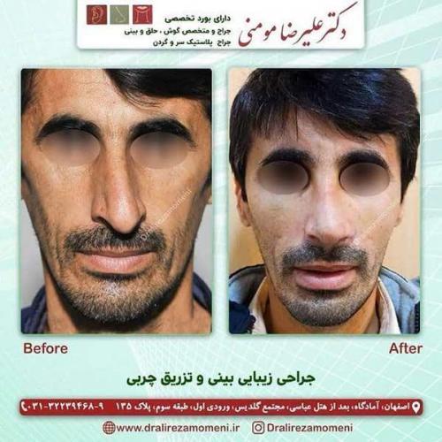 جراحی بینی و تزریق چربی 1