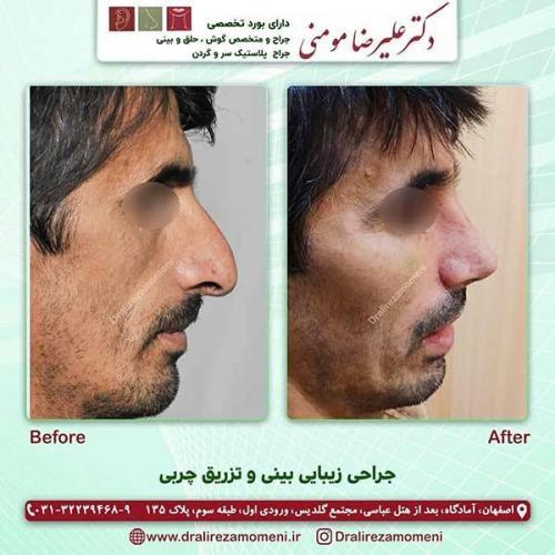 جراحی بینی و تزریق چربی 2