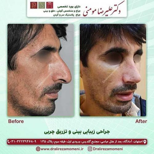 جراحی بینی و تزریق چربی 6