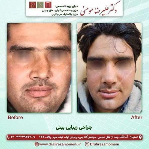 جراحی-بینی-144