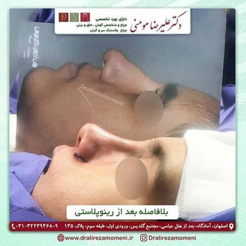جراحی-بینی-151